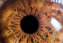 نتائج مثيرة للغاية.. علاج جديد لـسرطان العين الأكثر شيوعًا!